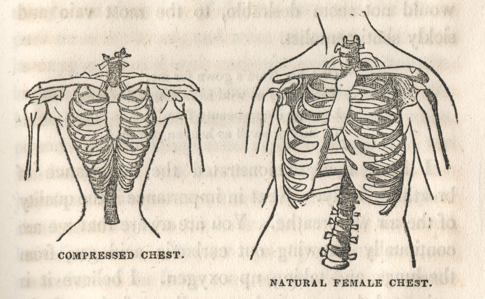 Illustration in Mary Gove Nichols's Lectures to Ladies on Anatomy and Physiology (Boston, 1842).