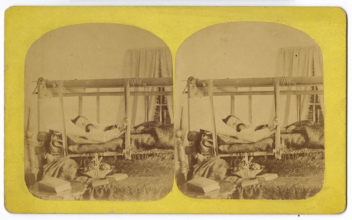 [Man lying on a mechanical invalid bed] (United States, ca. 1870). Albumen on stereograph mount.