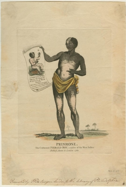 Primrose: The Celebrated Piebald boy, a Native of the West Indies; Publicly [sic] Shewn in London 1789 (London: Printed and sold at [T. Pole?], No. 55 Graceh. Strt, ca. 1790). Hand-colored engraving.